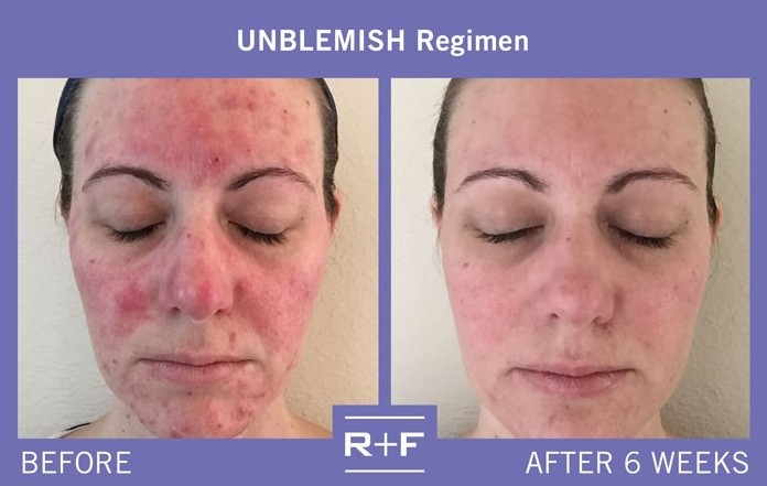 800x800_1470335151753-real-results---unblemish