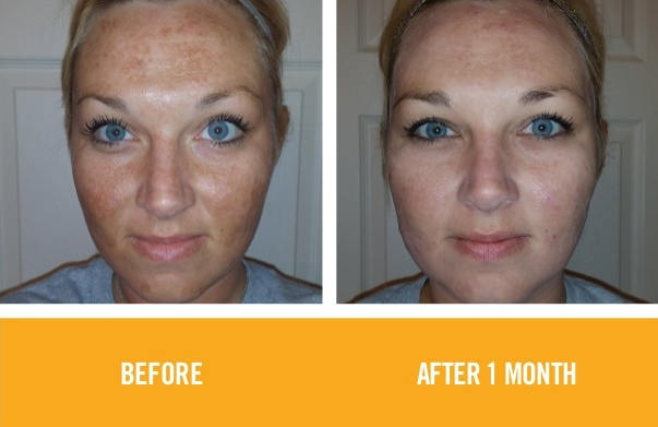 rodan-fields-before-and-after-photos-2015-31-638